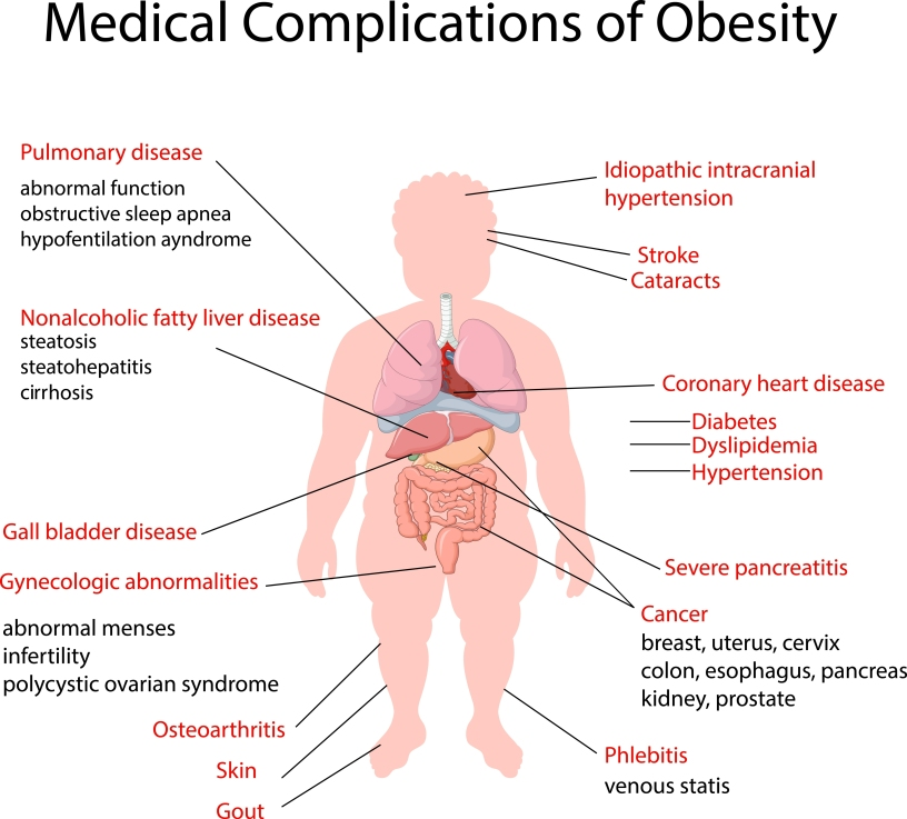 Obesity What Is It And Why Should We Care  Feel Healthy With Dr  Obesity What Is It And Why Should We Care